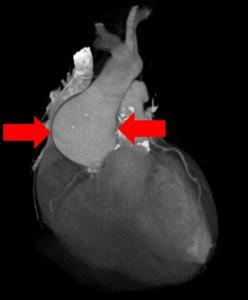Aortic aneurysm image